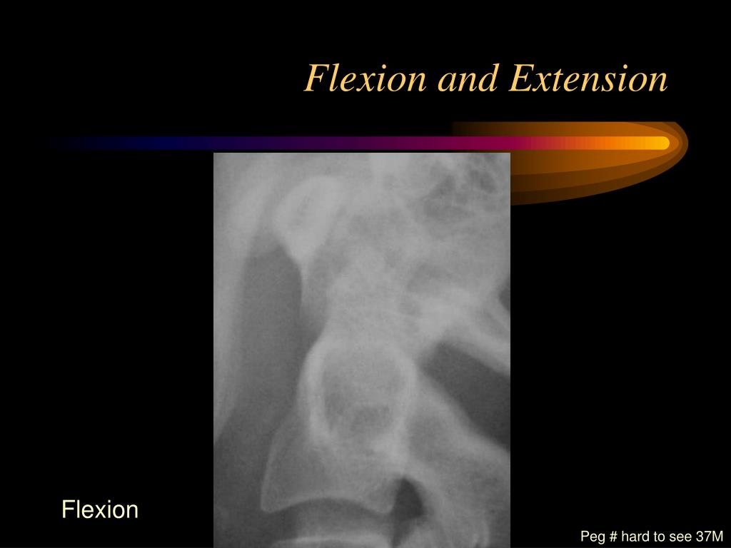 Flexion and Extension