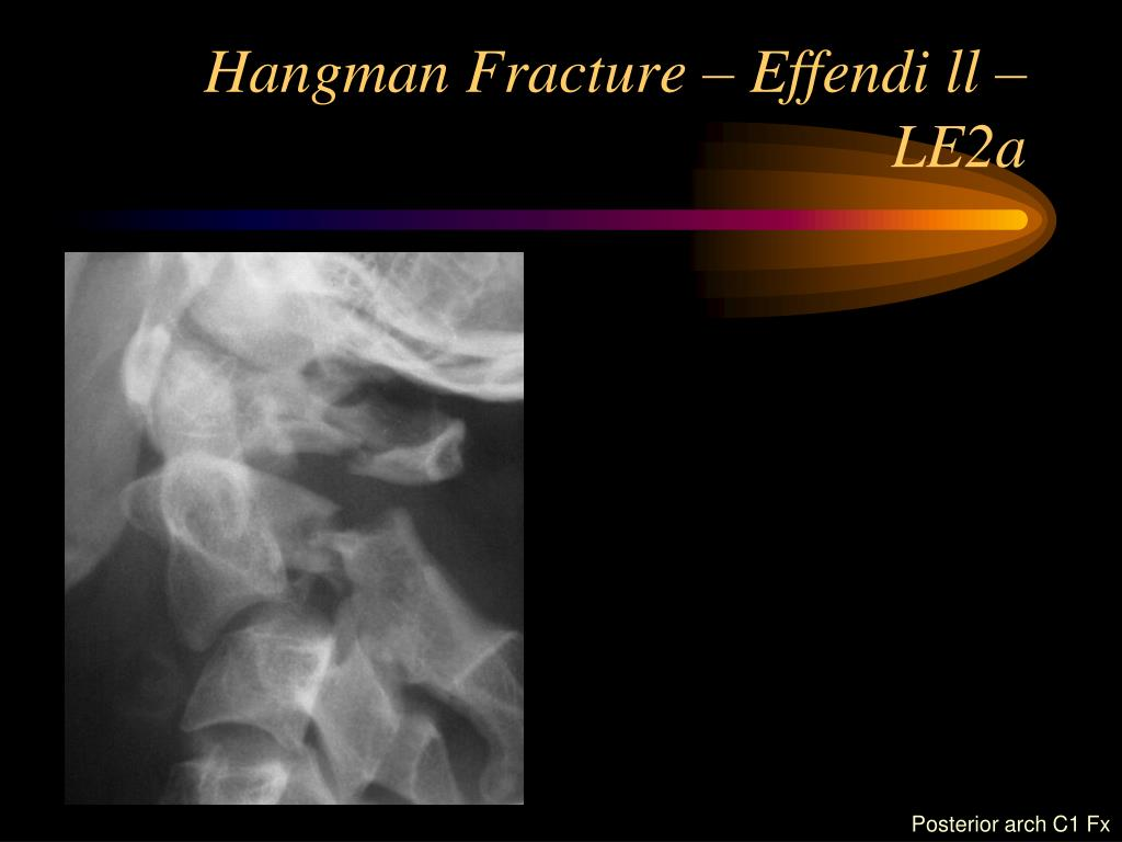 Hangman Fracture – Effendi ll – LE2a