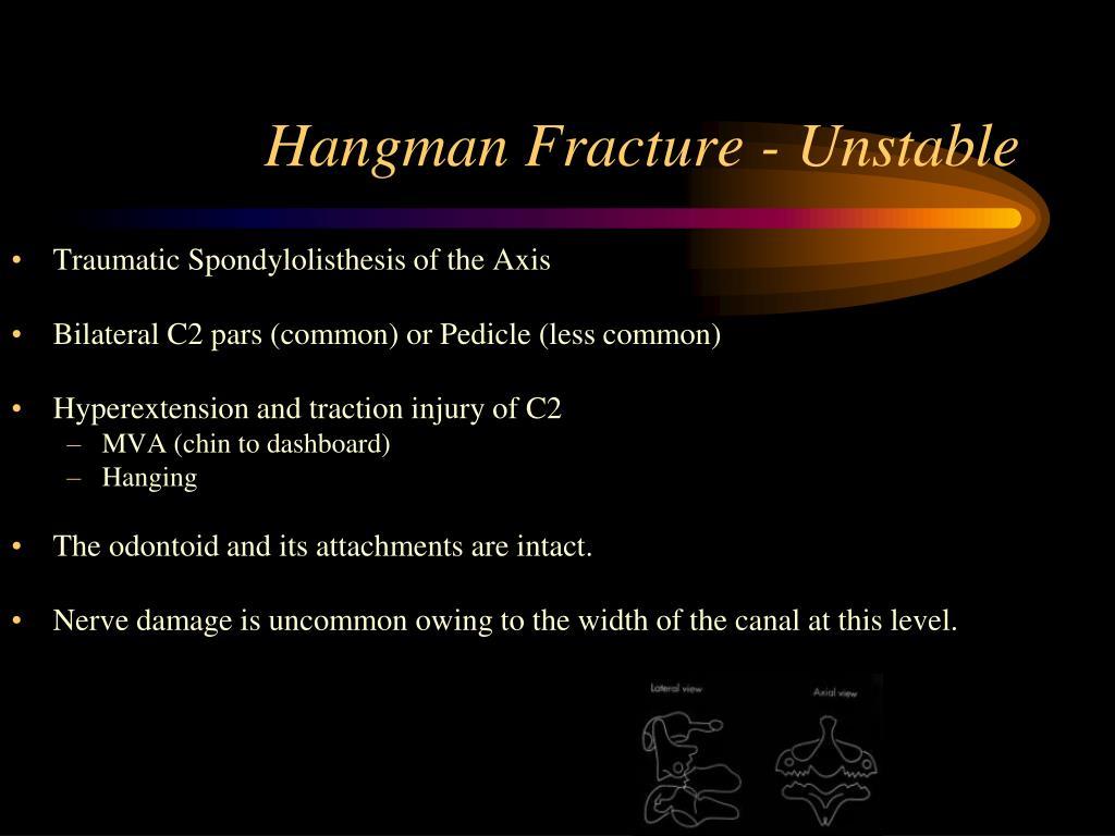 Hangman Fracture - Unstable