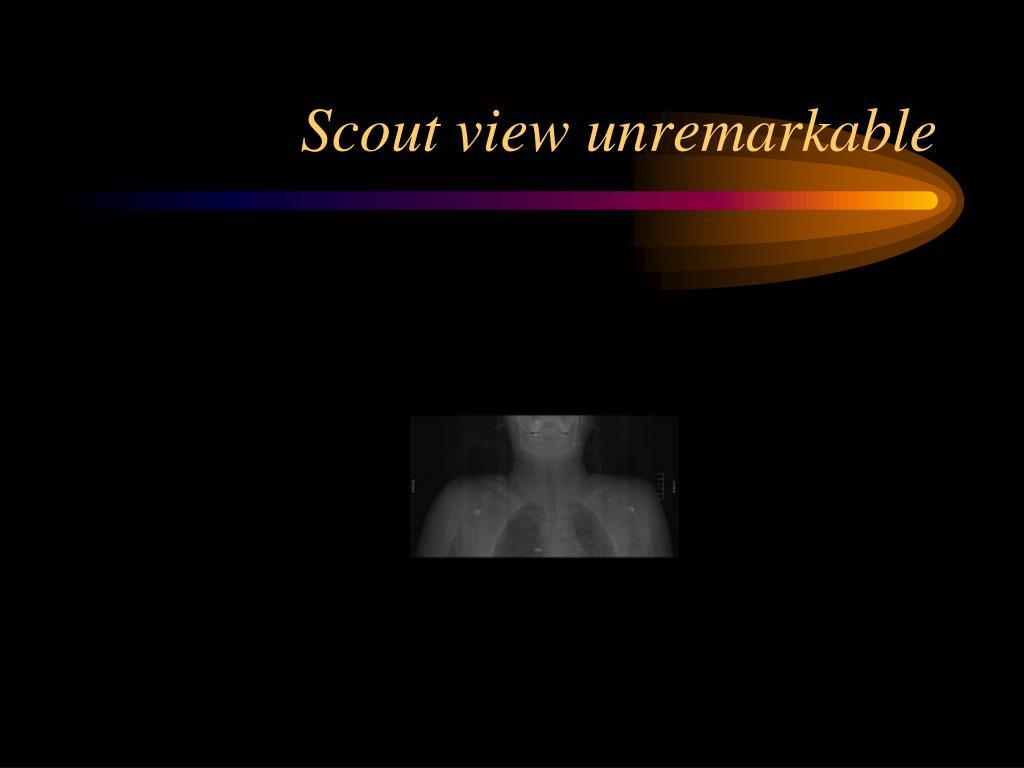 Scout view unremarkable