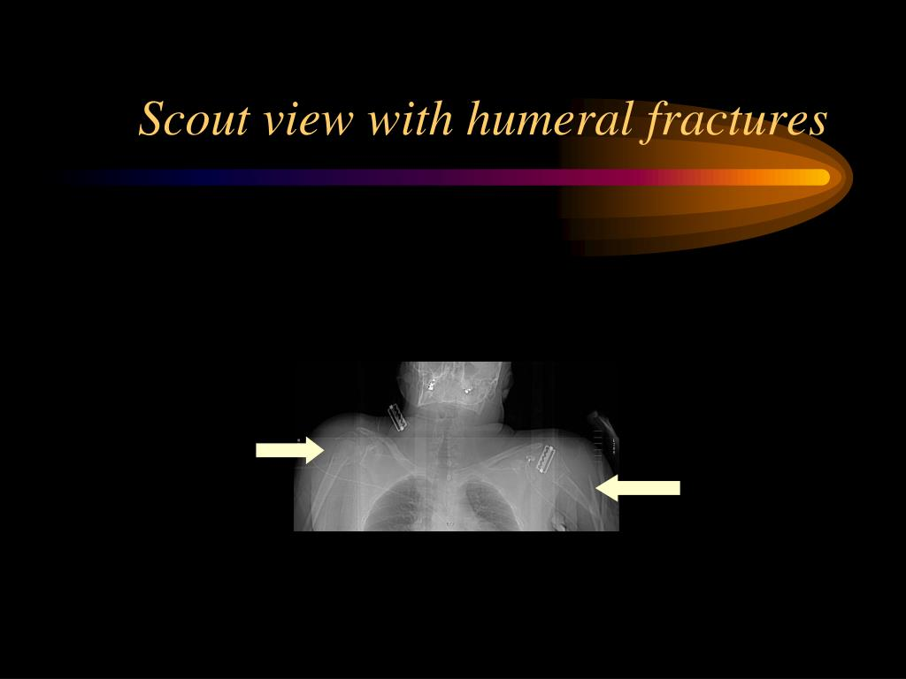 Scout view with humeral fractures