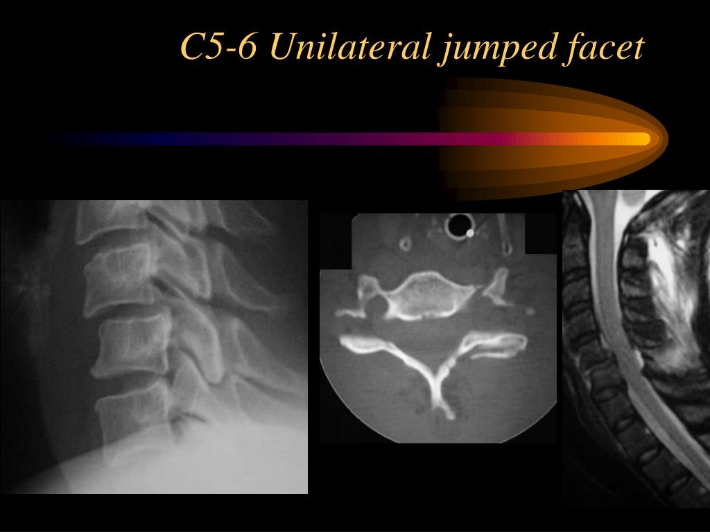 C5-6 Unilateral jumped facet
