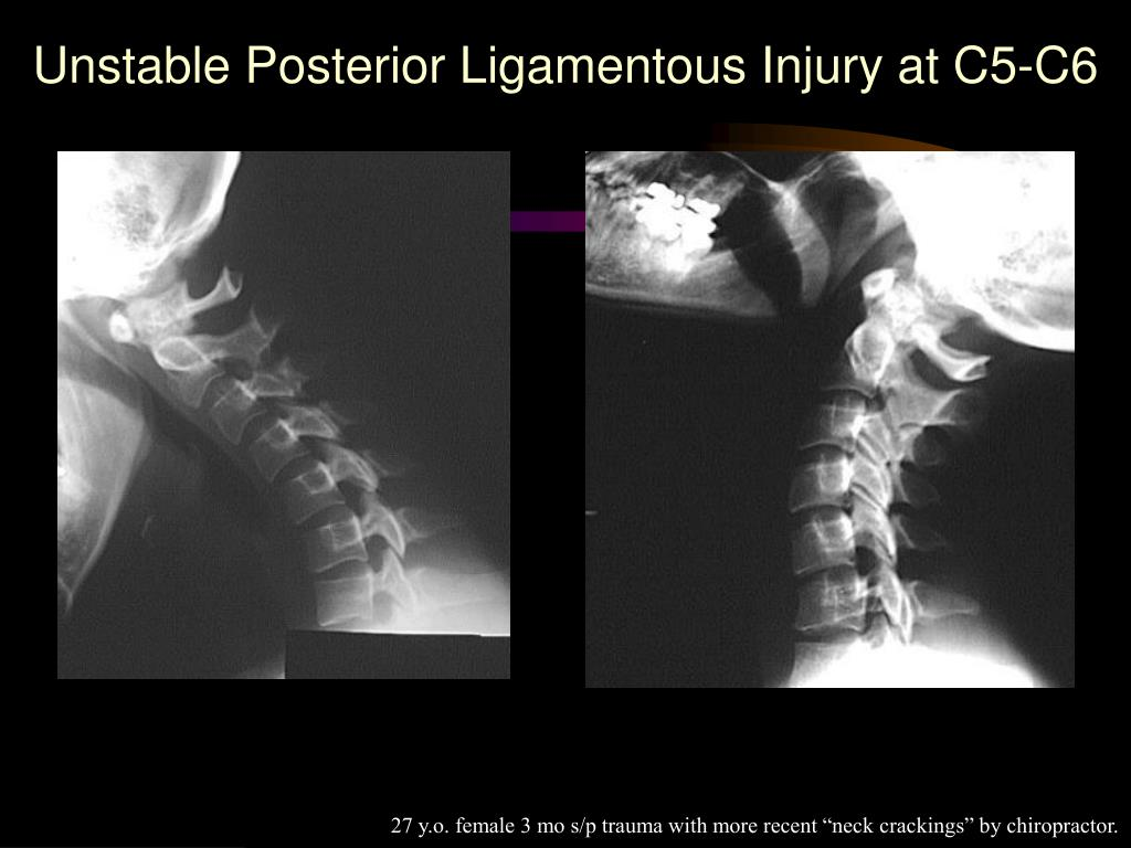 Unstable Posterior Ligamentous Injury at C5-C6