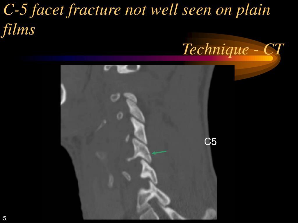 C-5 facet fracture not well seen on plain films