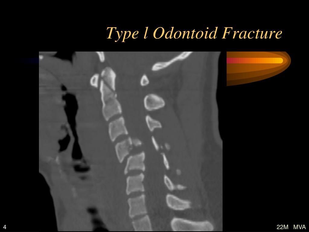 Type l Odontoid Fracture