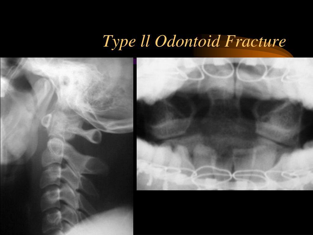 Type ll Odontoid Fracture