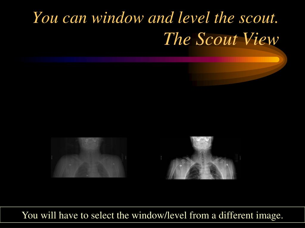 You can window and level the scout.