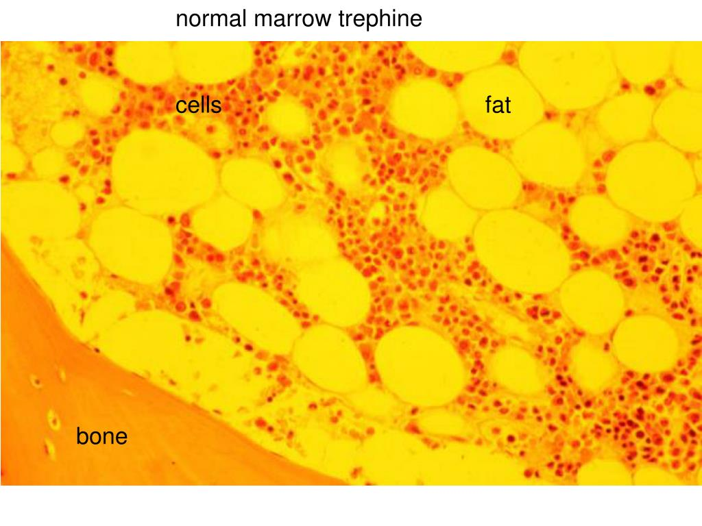 normal marrow trephine