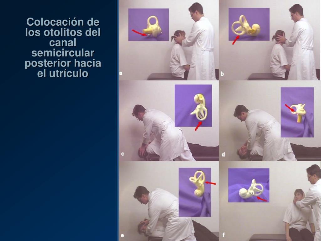 Colocación de los otolitos del canal semicircular posterior hacia el utrículo