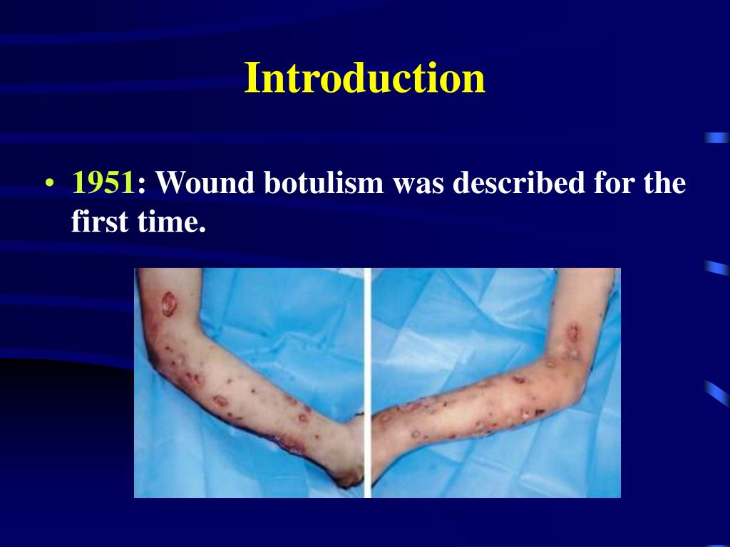 PPT - Clostridium botulinum and botulism PowerPoint ...