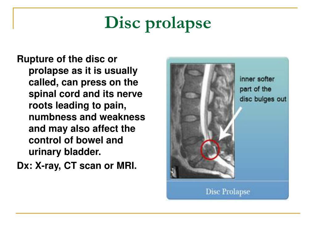 Disc prolapse