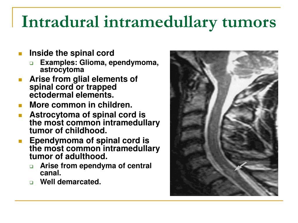 Intradural intramedullary tumors