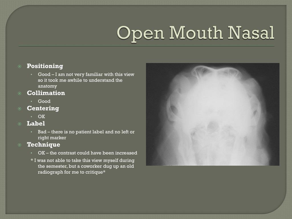 Open Mouth Nasal