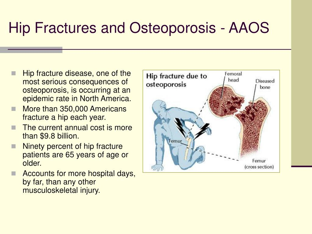 Hip Fractures and Osteoporosis - AAOS