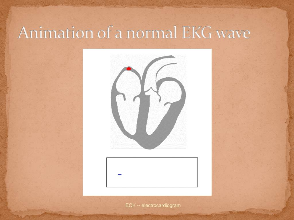 Animation of a normal EKG wave