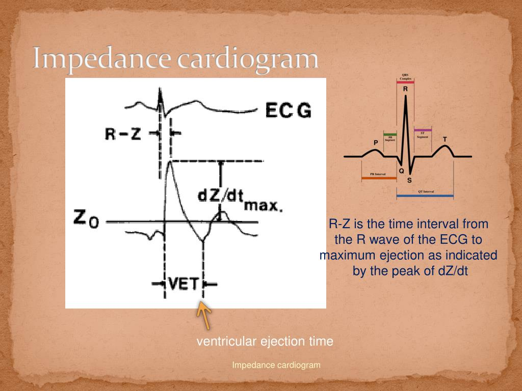 Impedance cardiogram
