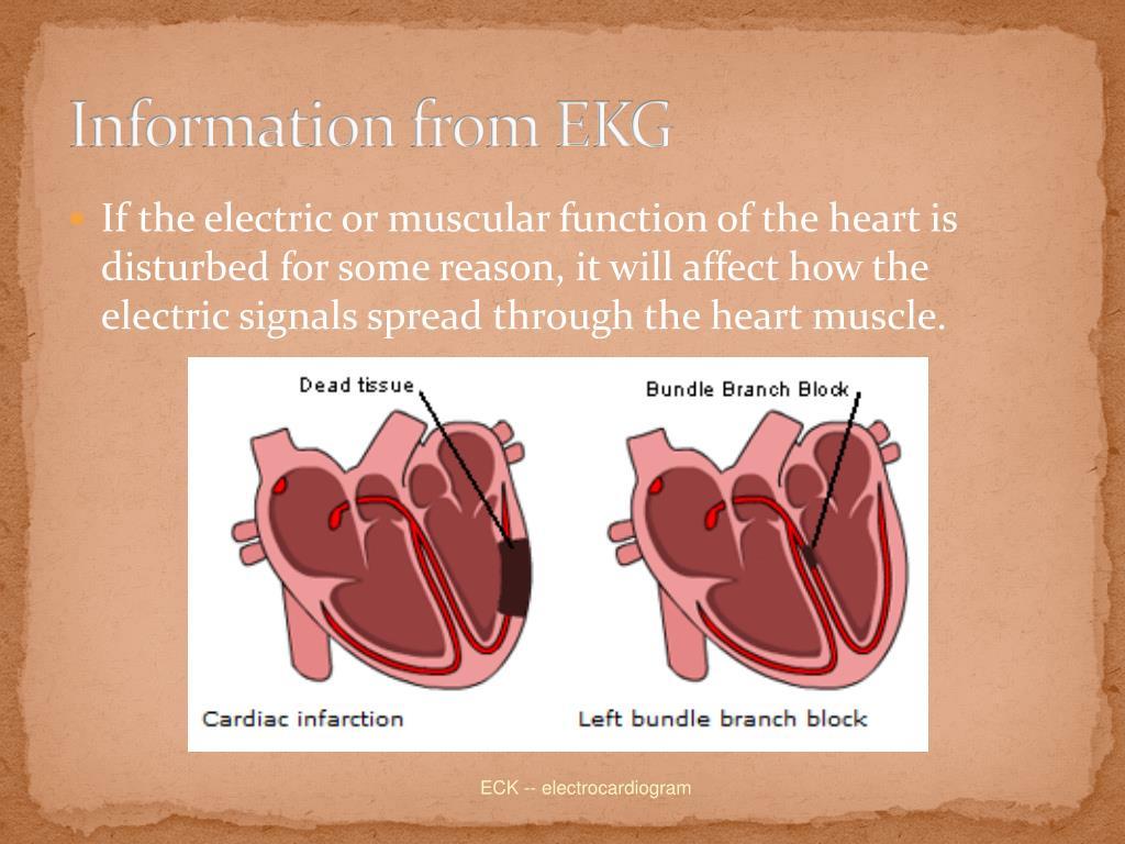 Information from EKG