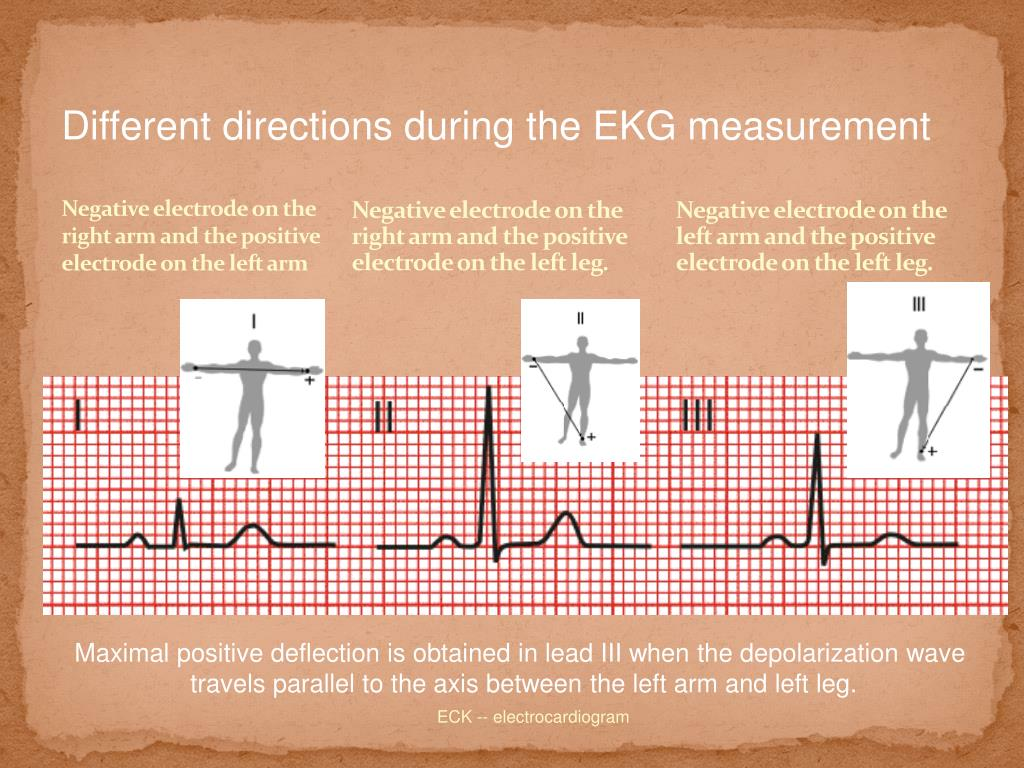 Different directions during the EKG measurement