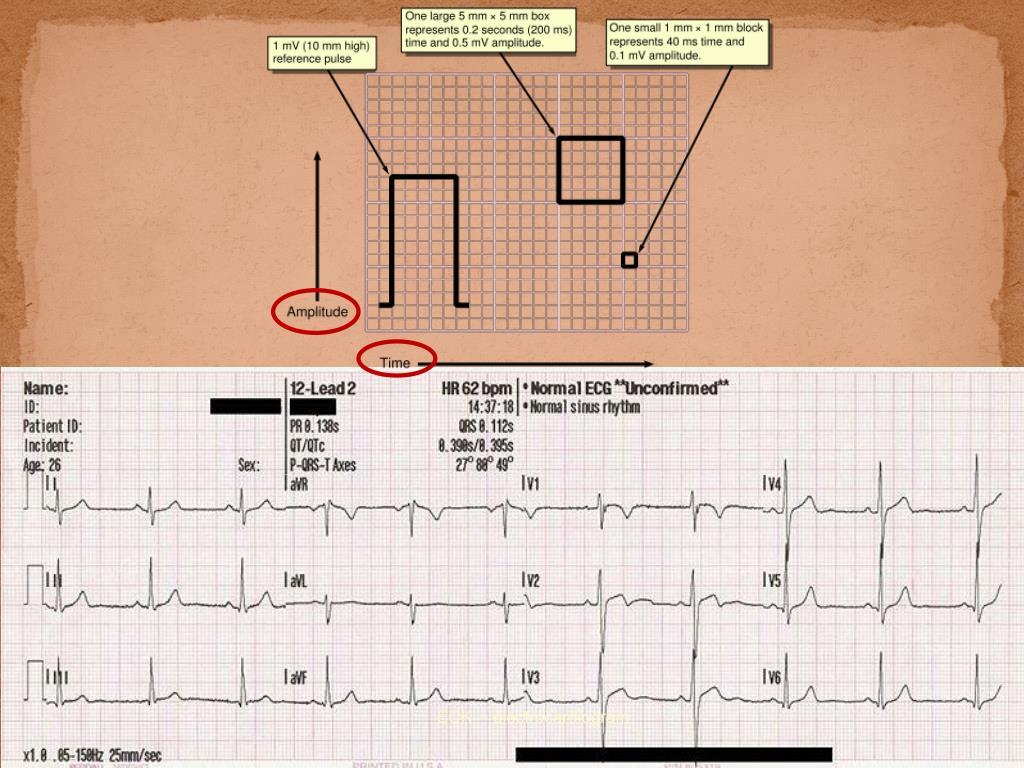 ECK -- electrocardiogram