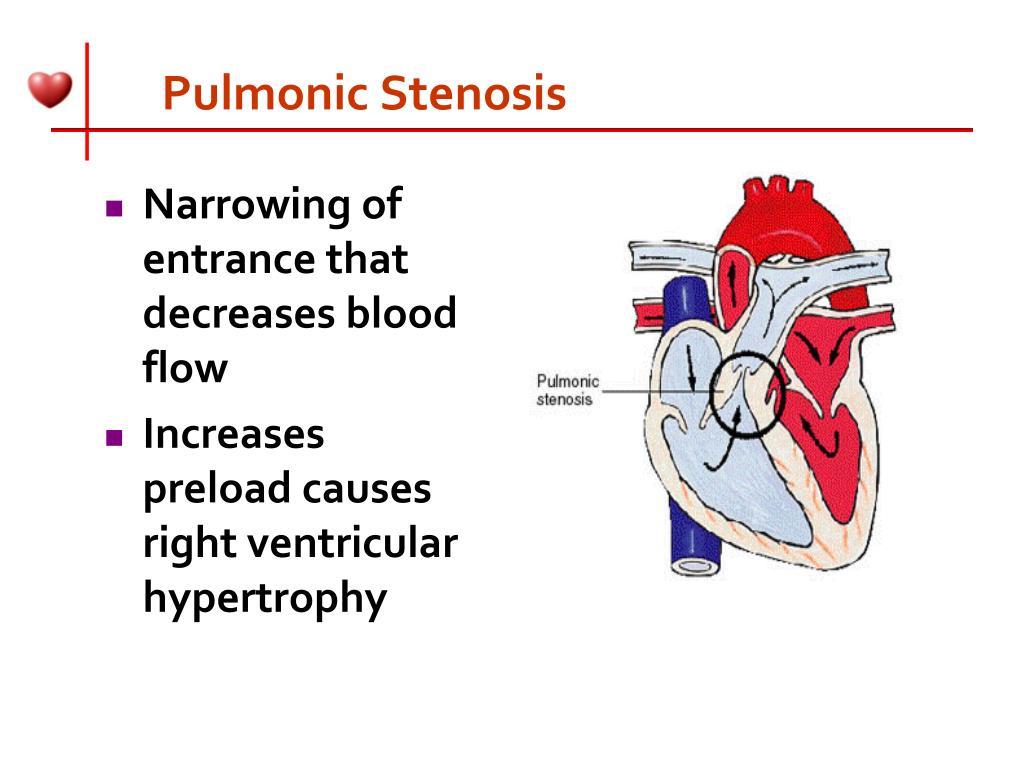 Pulmonic Stenosis