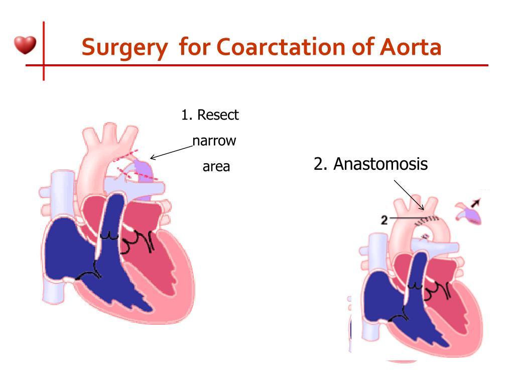 Surgery  for Coarctation of Aorta