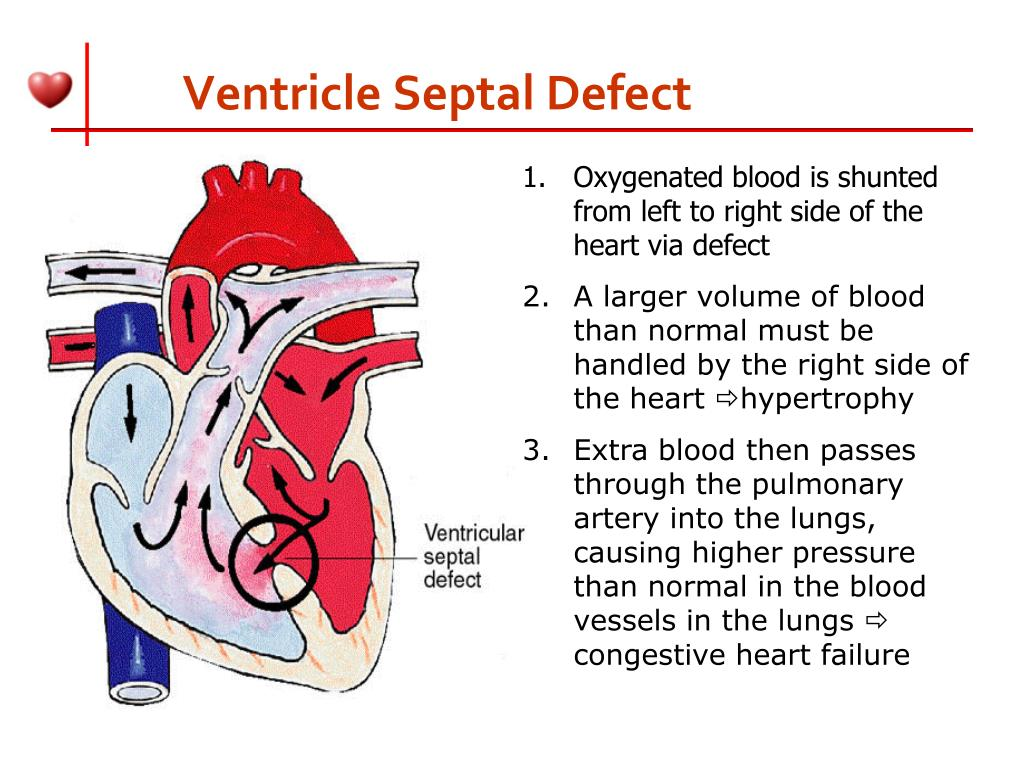 Ventricle Septal Defect