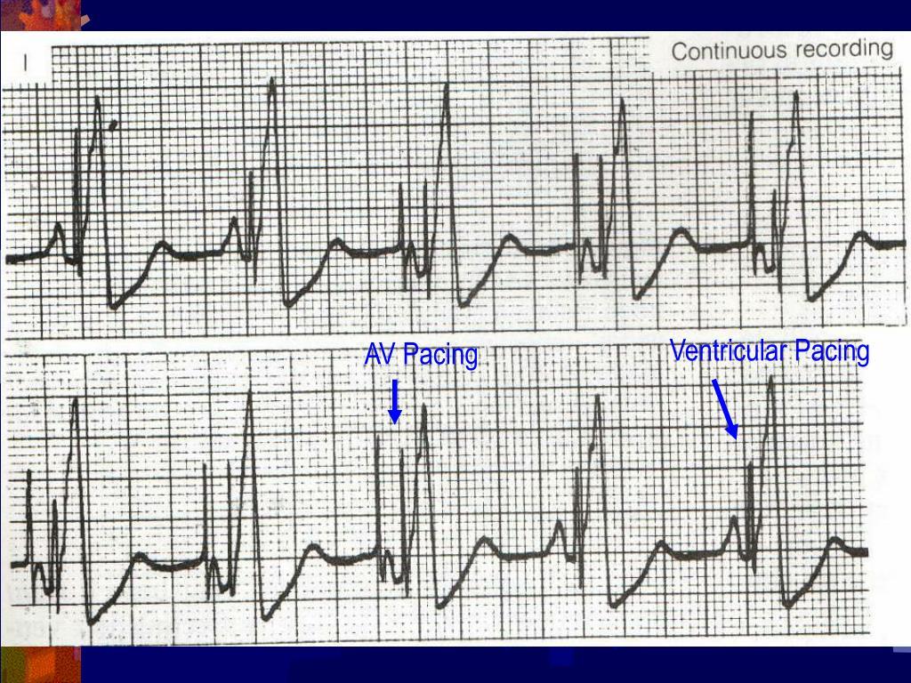 Ventricular Pacing