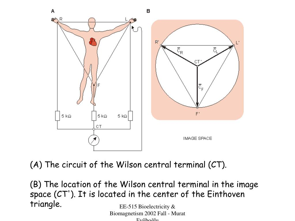 (A) The circuit of the Wilson central terminal (CT).