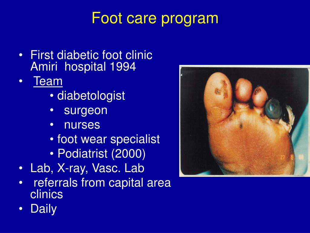 Foot care program