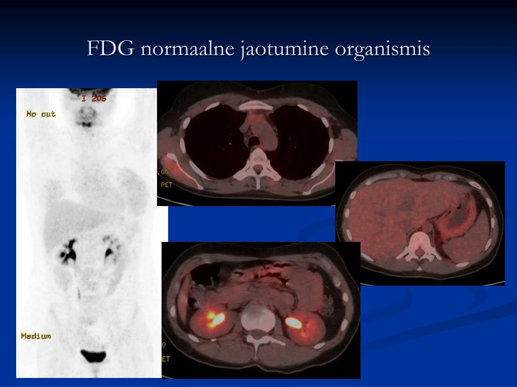 FDG normaalne jaotumine organismis