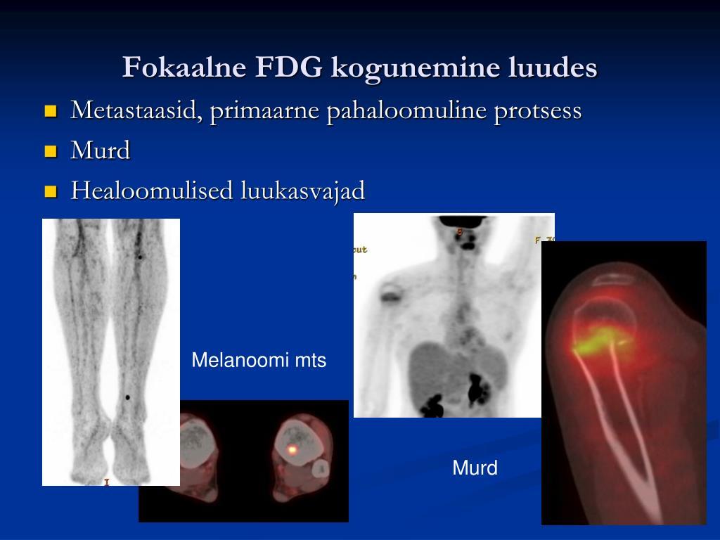 Fokaalne FDG kogunemine luudes