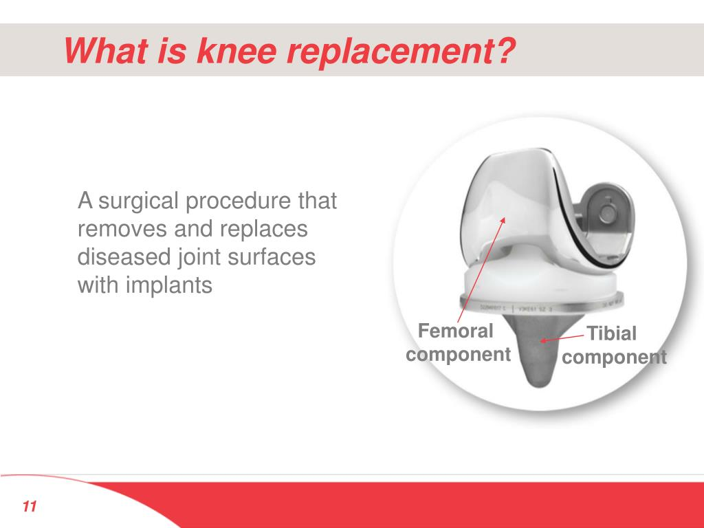 What is knee replacement?