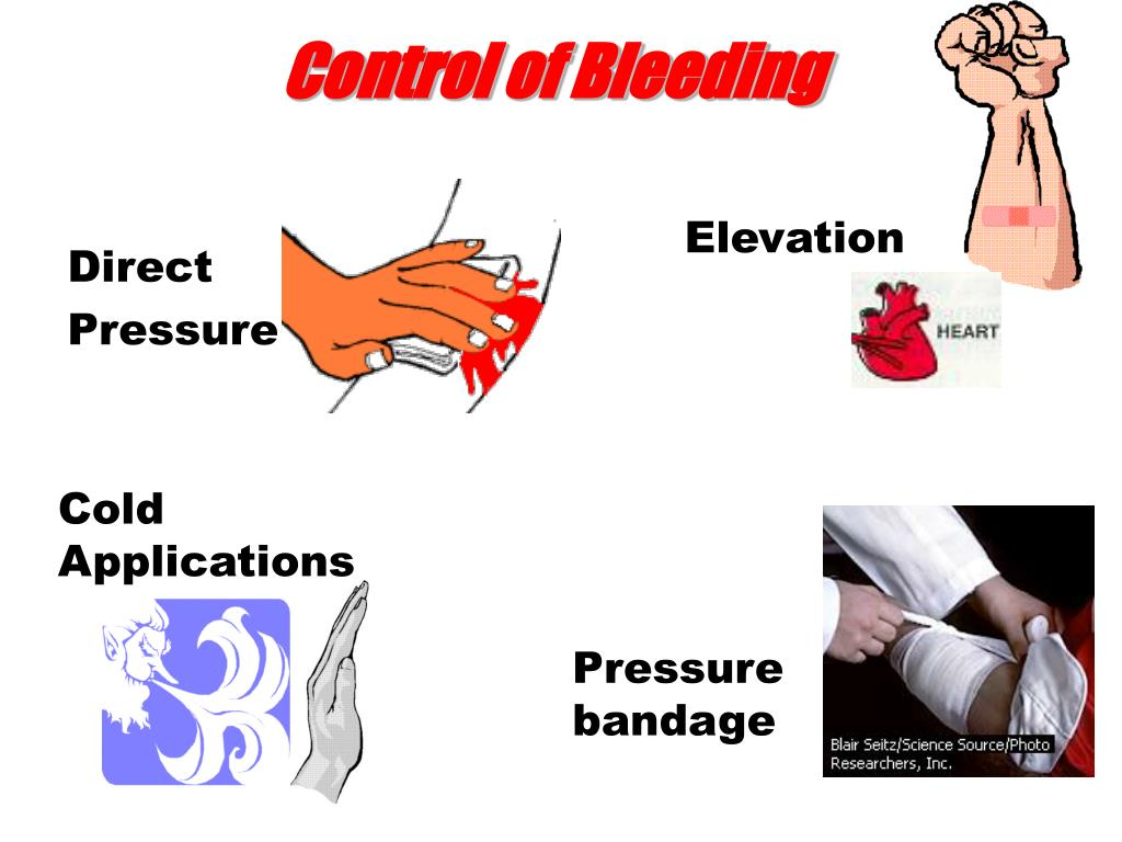 Control of Bleeding