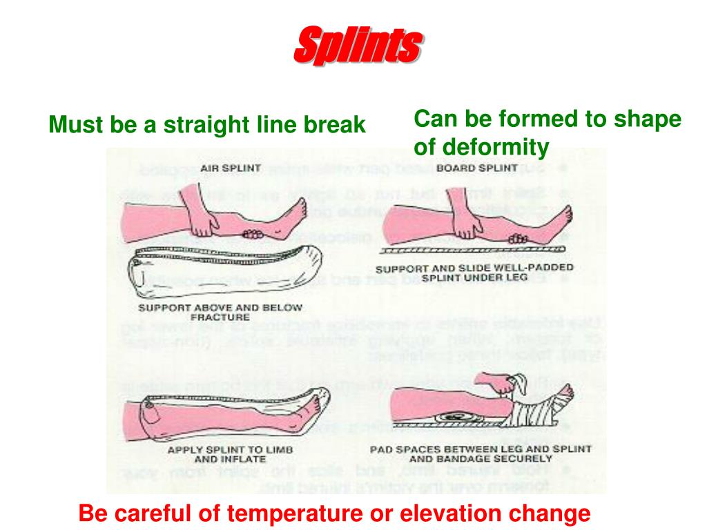 Splints