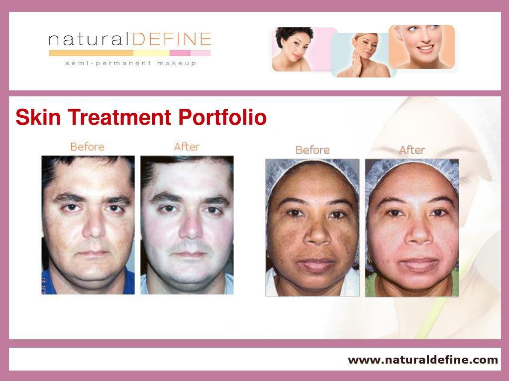 Skin Treatment Portfolio