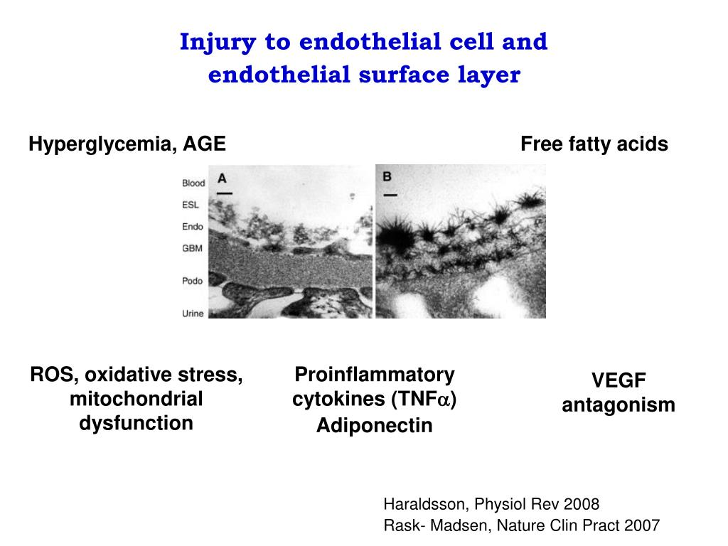 Injury to endothelial cell and endothelial surface layer