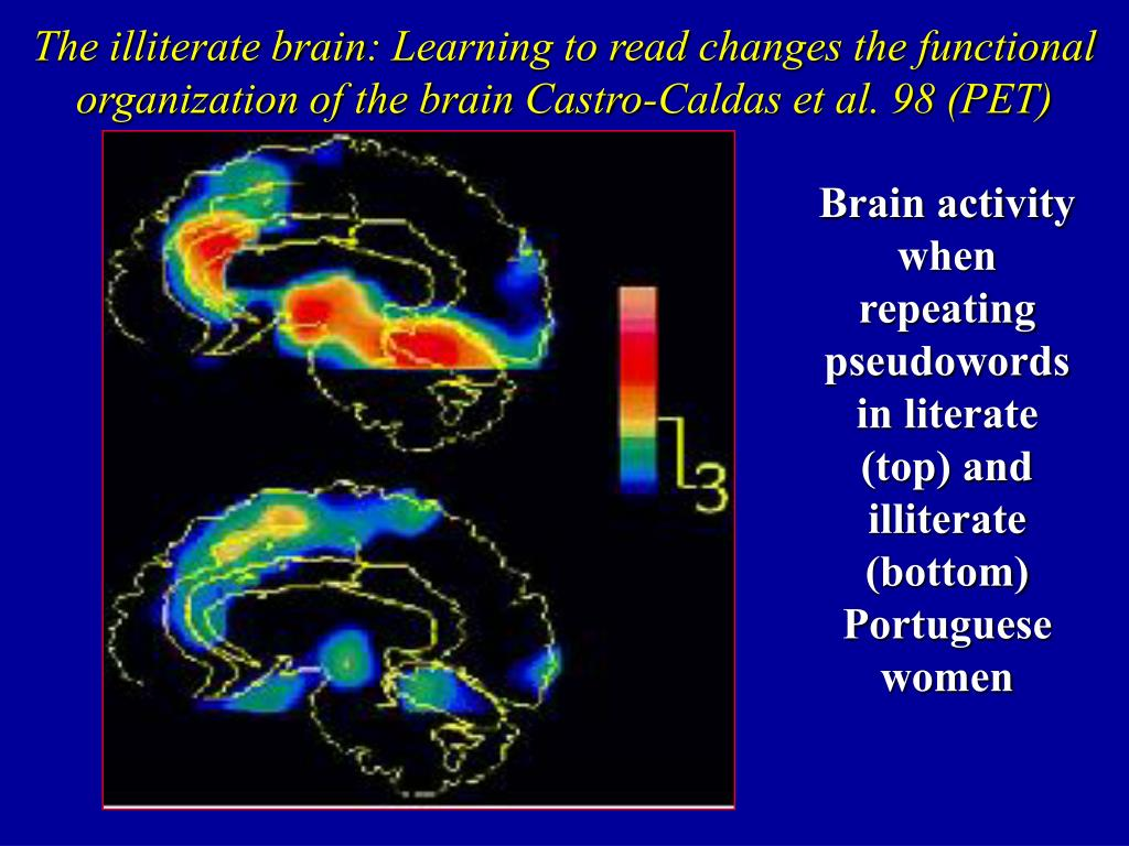 The illiterate brain