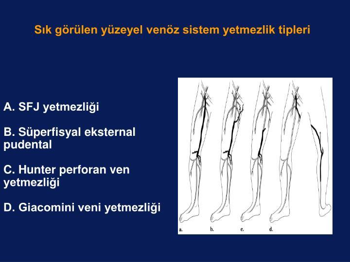 Sık görülen yüzeyel venöz sistem yetmezlik tipleri