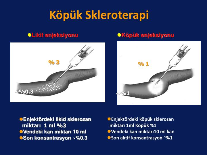 Köpük Skleroterapi