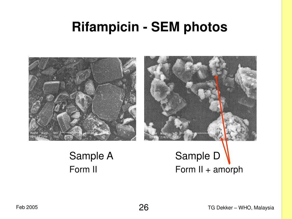 Rifampicin - SEM photos