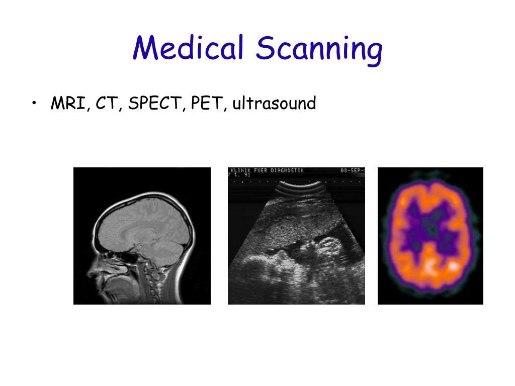 Medical Scanning