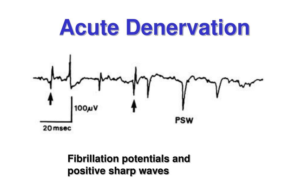 Acute Denervation