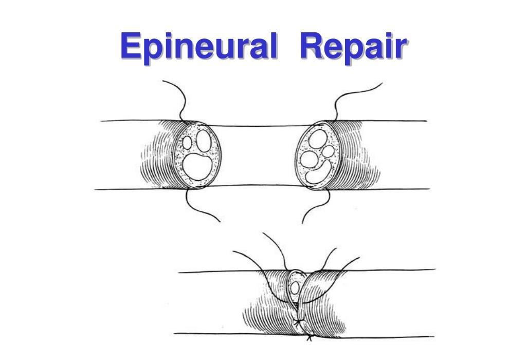 Epineural  Repair