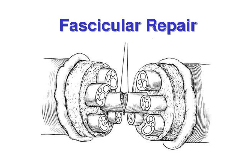 Fascicular Repair