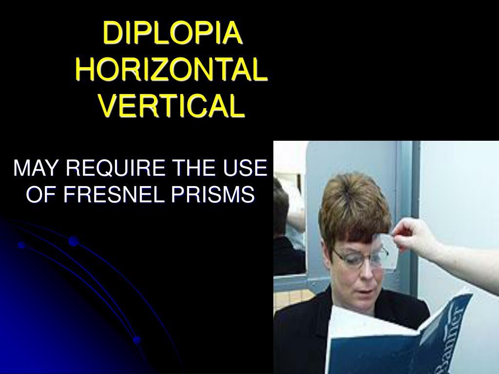 DIPLOPIA  HORIZONTAL