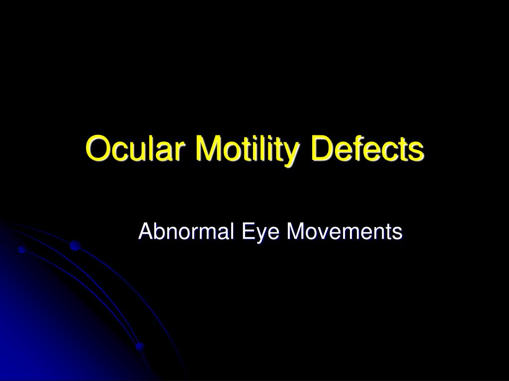 Ocular Motility Defects
