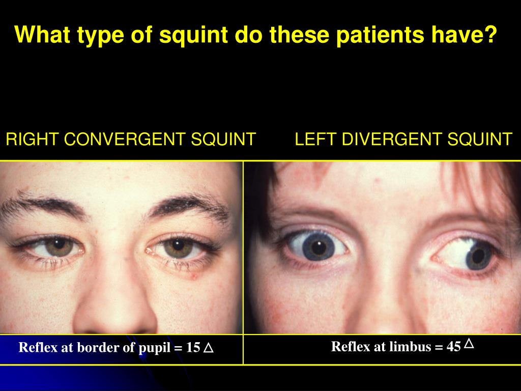 What type of squint do these patients have?