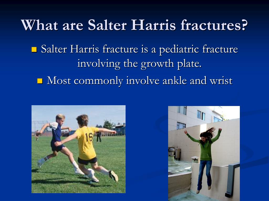 What are Salter Harris fractures?