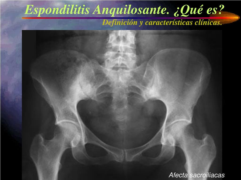 Espondilitis Anquilosante. ¿Qué es?