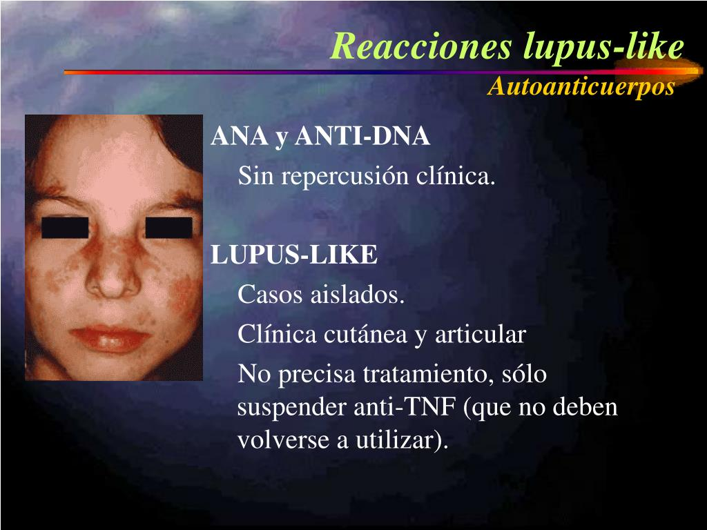Reacciones lupus-like